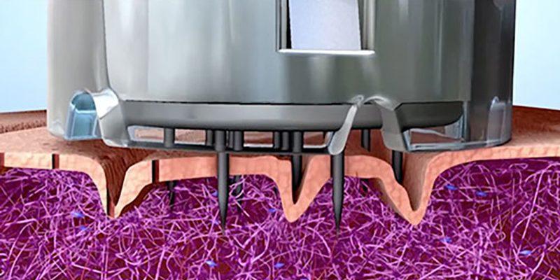 animation-still-microneedling